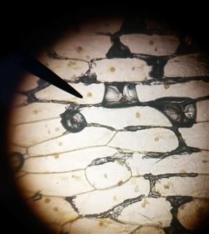 Onion Skin Slide with iodine stain 430x magnification